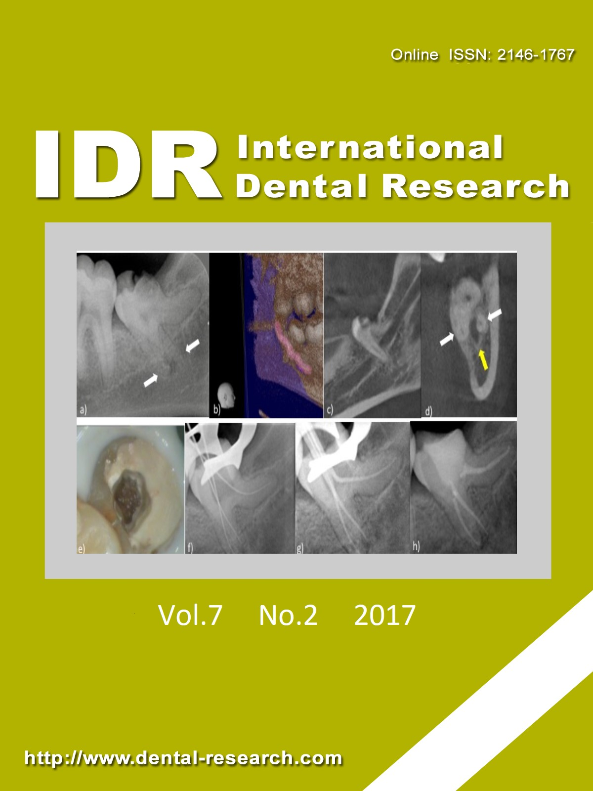 International Dental Research, Vol.7, No.2, August 2017